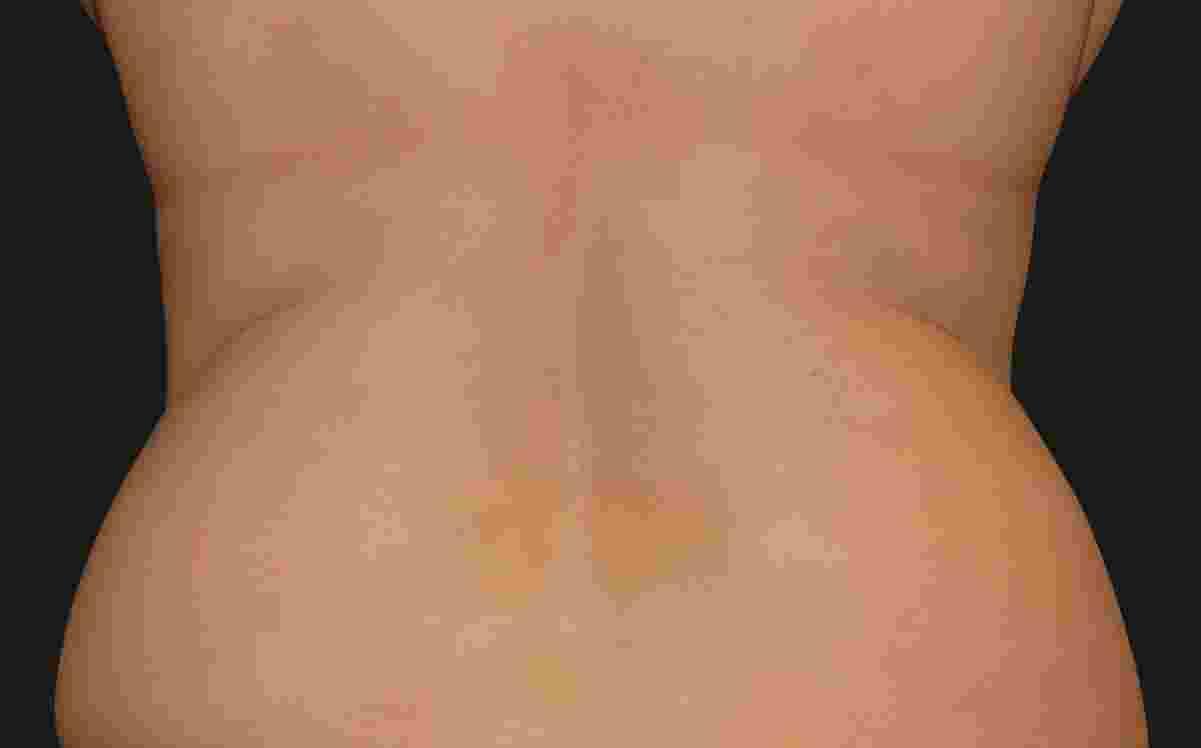 Flank_Female1_Before.jpg