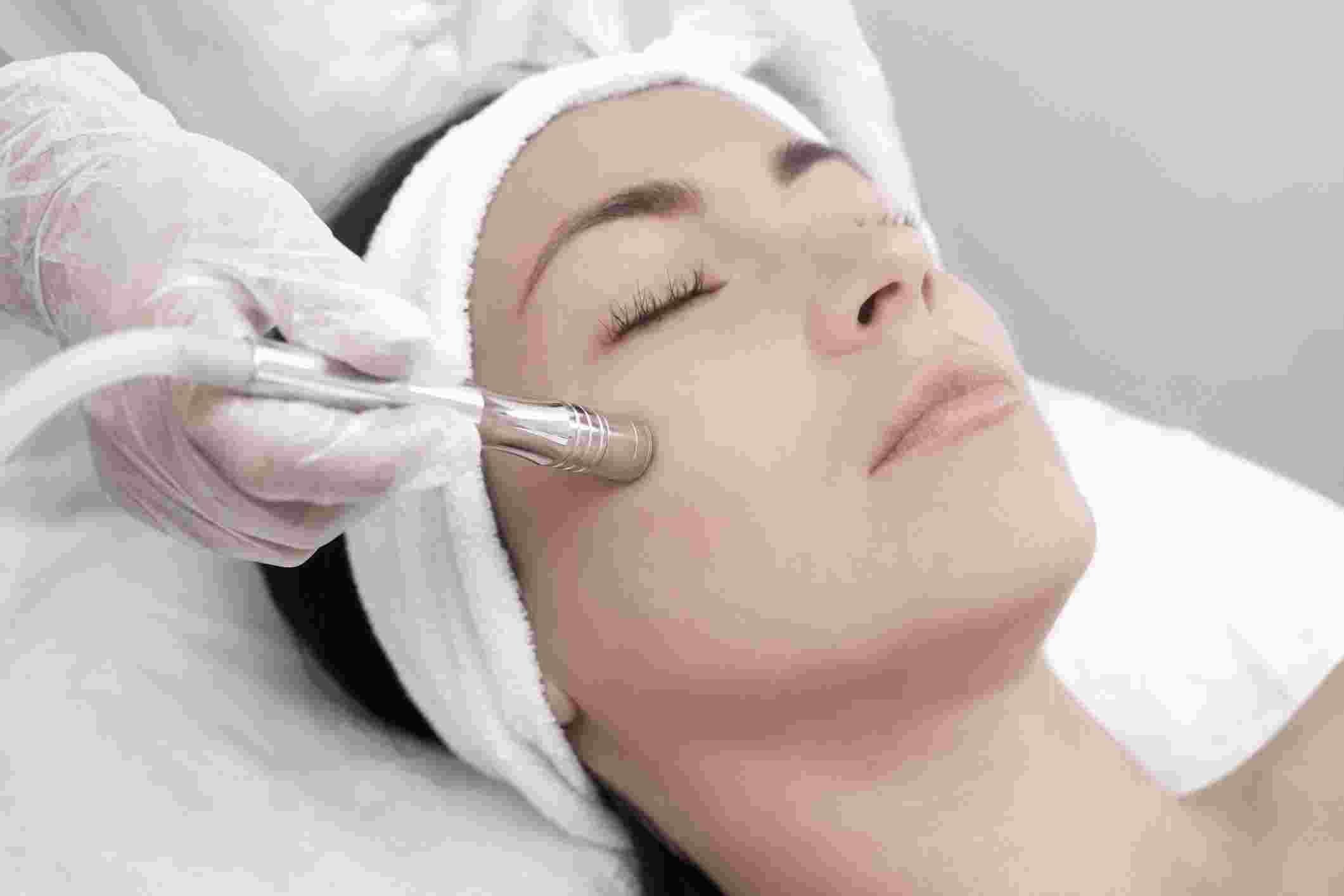 Everything you need to know about the 5-Step Microdermabrasion