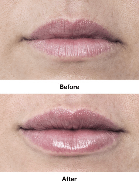 Lips Borders Volume
