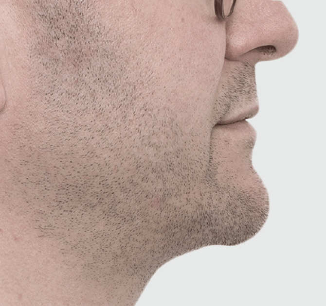 After Chin Sculpting