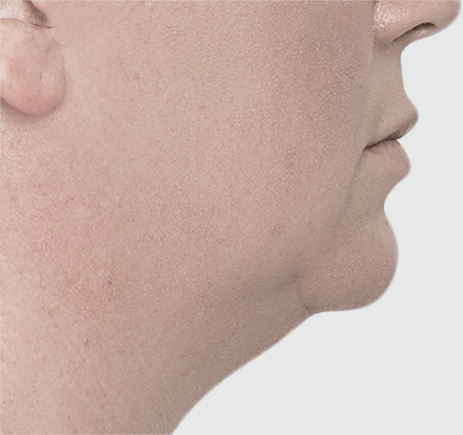 Before Chin Sculpting