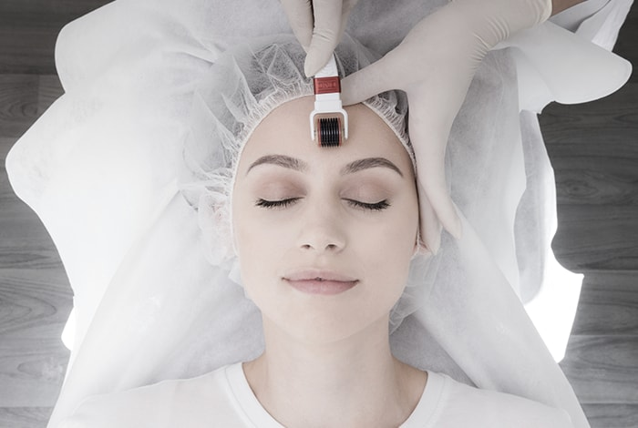 Skin needling benefits
